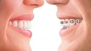 For a mouthful of pearly white, straight teeth, one of the leading options is #Invisalign.