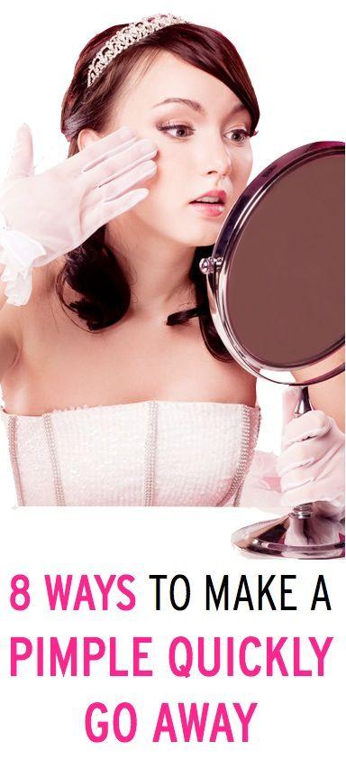 8 expert strategies to quickly get rid of a pimple (these are beauty tips we need to know!)