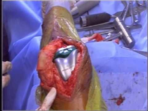 total knee replacement - femoral nerve block for post knee surgery, Muscles