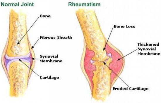 Tratamente reumatism techirghiol