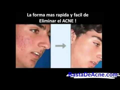 Como Eliminar El Acne Naturalmente | Como Curar El Acne [Como Desaparecer el Acne] - http://solucionparaelacne.org/blog/como-eliminar-el-acne-naturalmente-como-curar-el-acne-como-desaparecer-el-acne/