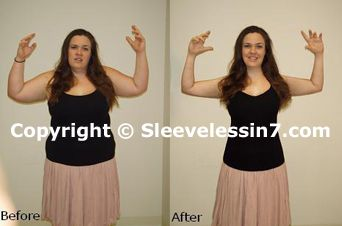 #How To #Get #Rid Of Flabby Arms FAST -- Do you want to lose 10 pounds in 10 days the healthy way? Click here -> http://wellbeingbodysite.com/s/lose-10-pounds-in-10-days right now