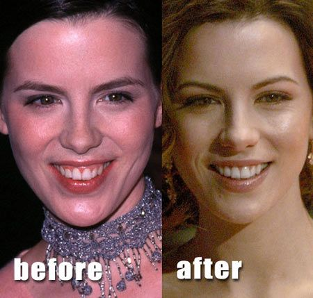 Kate Beckinsale had one of the subtlest nose jobs in Hollywood.  The plastic surgery lifted the tip of her nose ever so slightly.