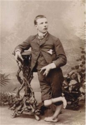 """""""Lobster Boy"""" Fred Wilson was born in Somerville, Massachussetts in 1866. He had ectrodactyl hands, twisted legs and absent teeth in his lower jaw."""