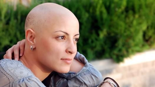 Tips For Managing Chemotherapy Hair Loss as brought to you by http://www.1hairregrowth.com/