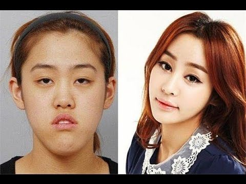 Koreans are obsessed with plastic surgery, especially shaving jaws!  #extrememakeover