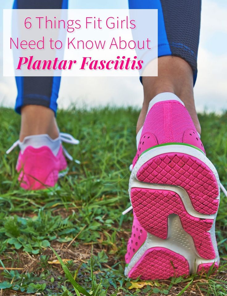 6 Things Every Fit Girl Must Know About Plantar Fasciitis