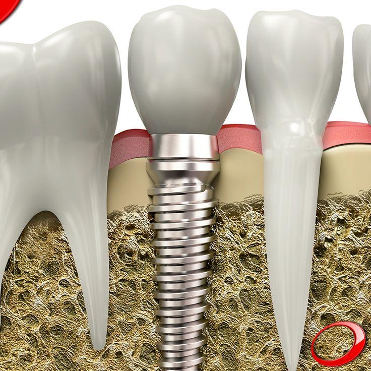 La durabilidad de los implantes dentales puede variar, pero en general el tratamiento tiene una tasa de éxito del 98%. ........................................................................................ Concierta YA tu consulta SIN NINGÚN COMPROMISO: >http://www.pnid.es/landing.html http://www.pnid.es/ #dentista#implantes#sonrisa#clínica#salud#saludable#calidaddevida