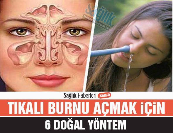 Tıkalı burnu açmak için 6 doğal öneri! #tıkalıburun #sağlık #sağlıkhaberleri