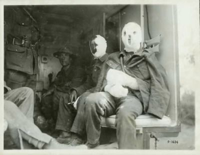 "World War I Photograph, ""Mustard Gas Victims.""  The extensive bandages on these wounded Canadian soldiers may indicate that they have suffered the effects of flame or mustard gas. Mustard gas burned the lungs, but also caused serious external blisters and disfigurement. Source: Canadian War Museum - Musée canadien de la guerre"
