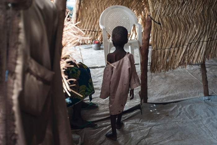 A malnourished boy at a Unicef clinic in Maiduguri - aid agencies warn that the area's instability could produce a famine