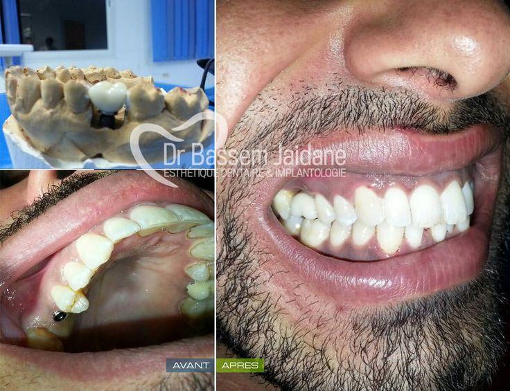 les implants dentaires en tunisie un moyen efficace pour restaurer un sourire les implants. Black Bedroom Furniture Sets. Home Design Ideas