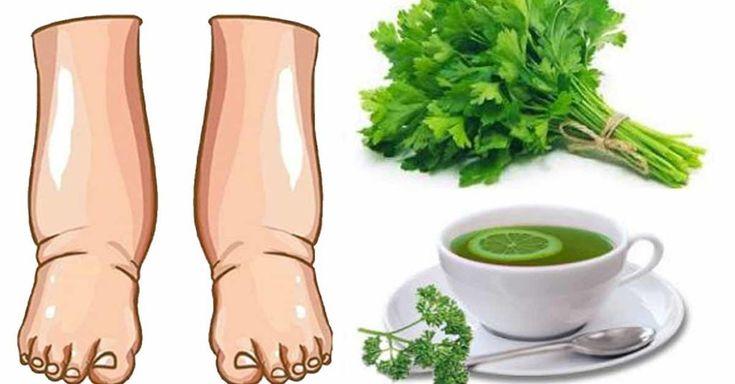 To najlepszy naturalny środek na opuchnięte nogi!!