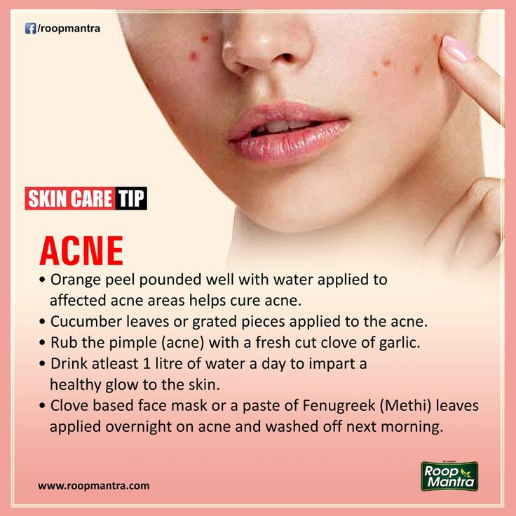 Skin Care Tips - #RoopMantra  Comment, Like & Share With Everyone.  #AyurvedicCream , #HerbalFaceWash , Capsules & Soaps 24X7 Helpline 0171-3055111 | www.roopmantra.com