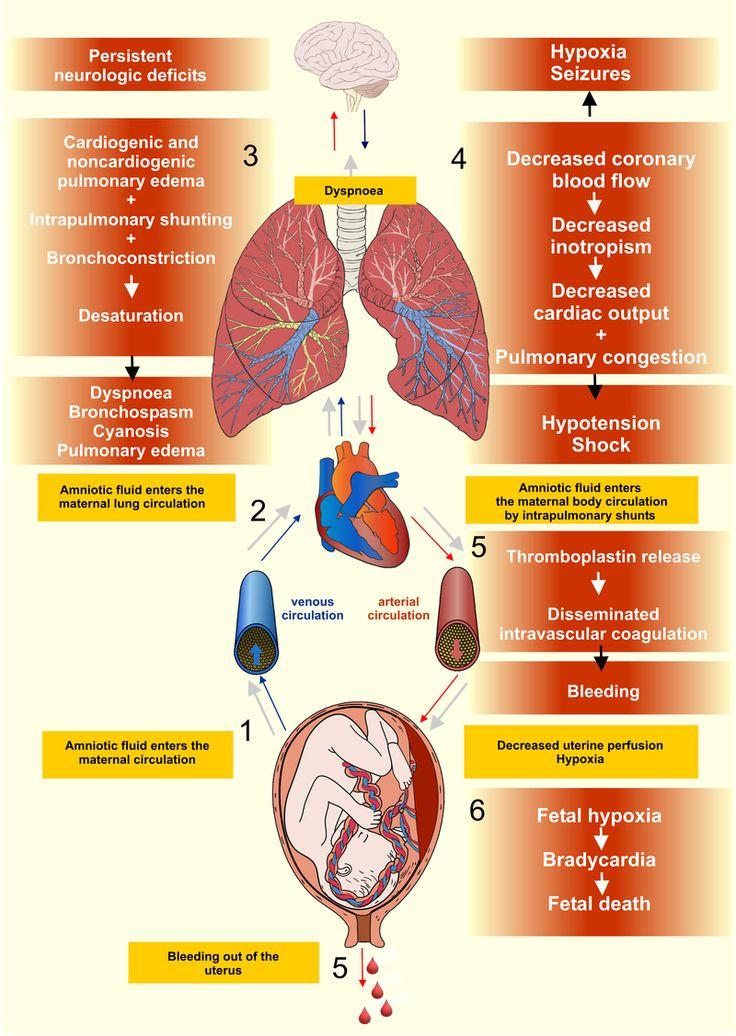 Amniotic fluid embolism - Amniotic fluid embolism - Wikipedia, the free encyclopedia