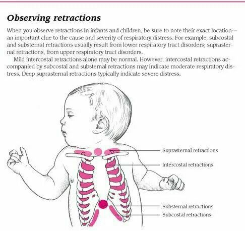 Retractions - Watch for this in babies.