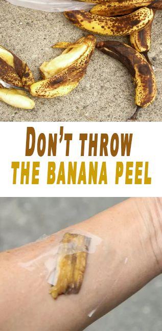Don't throw the banana peel