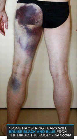 Anatomy Of An Injury Hamstring Pulls And Tears Hammy