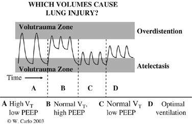 Volutrauma may be caused by a large tidal volume (V T) with (A) or without low positive end expiratory pressure (PEEP). A normal tidal volume with high PEEP (B) may also cause lung over distention and volutrauma. A low PEEP (A and C) may cause repeated collapse and re-opening of the alveoli, which also causes lung injury.