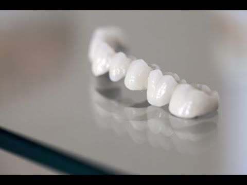 Different Types of Dental Bridges and Care Tips www.bondidental.com.au
