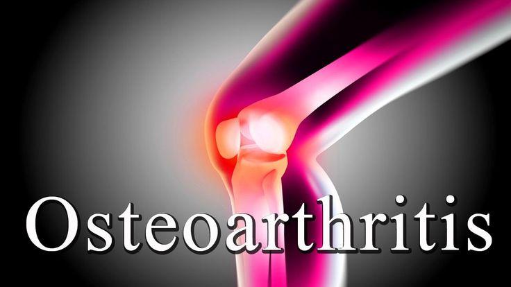 #remedy #remedies #naturaltreatment #homeremedies #osteoarthritis #kneetreatment - Osteoarthritis Treatment - Knee & Hip   Natural Ayurvedic Home Remedies for Knee Osteoarthritis  