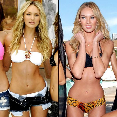 Candice Swanepoel Before And After Plastic Surgery Candice swanepoel before after