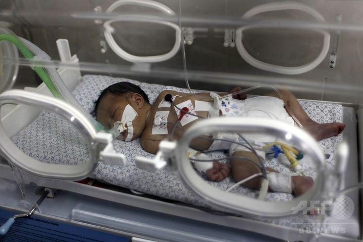 パレスチナ自治区ガザ地区(Gaza Strip)ハンユニス(Khan Yunis)のナセル病院(Nasser Hospital)で、イスラエルの攻撃で死亡した母親から帝王切開で取り出され、保育器で育てられる生後2日のシャイマ・シーク・イード(Shayma Sheikh al-Eid)ちゃん(2014年7月27日撮影)。(c)AFP/SAID KHATIB ▼29Jul2014AFP ガザ攻撃で死亡の妊婦から赤ちゃんを摘出 http://www.afpbb.com/articles/-/3021741 #Khan_Yunis #Nasser_Hospital