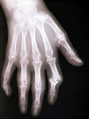 Rheumatoid arthritis (RA) is a chronic disease that affects the joints. Get answers to frequently asked questions about rheumatoid arthritis diagnosis and more.