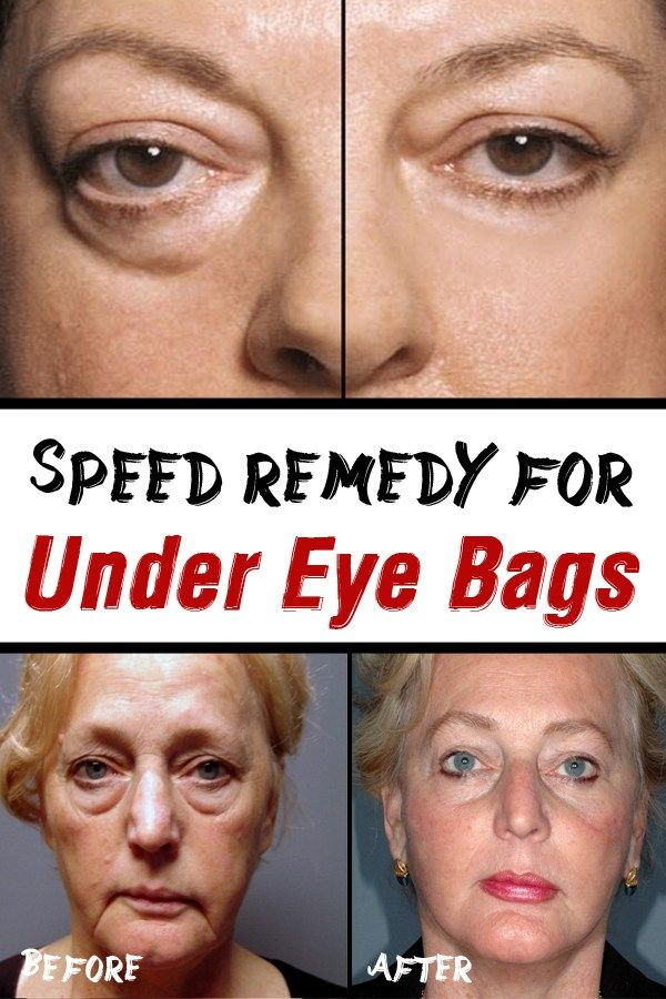 Speed remedy for under eye bags