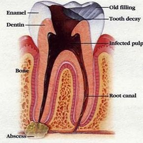 Natural Remedy Tooth Root Infection