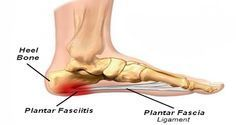 plantar-fasciitis-or-joggers-heel-how-to-get-rid-of-the-pain-in-the-heel