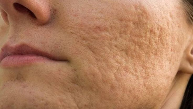 How To Remove Pimple Marks -  Acne Marks Treatment