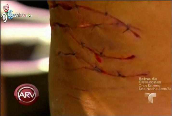 Un Hombre Narra Como Se Salvo De El Ataque De Un Tiburon Blanco #Video