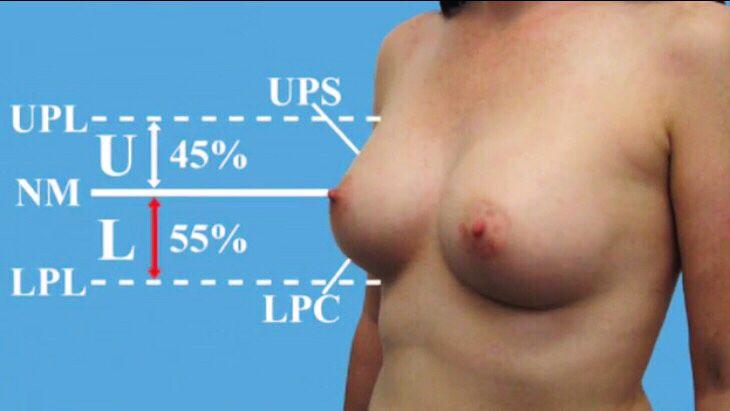 Cirurgia plástica não é nada fácil, tem até matemática! Close da mama mais votada do post anterior 👆 #ComoFazerumBeloDecote #bojo #polosuperior #poloinferior #mamoplastiadeaumento #protesedemama #protesedesilicone
