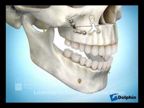 La impactación maxilar (sonrisa gingival) Estetica Maxilofacial es la primera clínica en Bogotá especializada en extracción de cordales en tan solo 15 minuto...