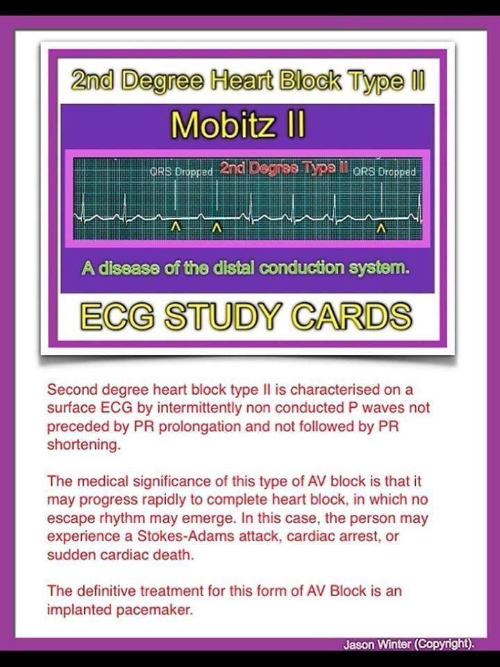ECG - 2nd Degree Heart Block (Type 2)