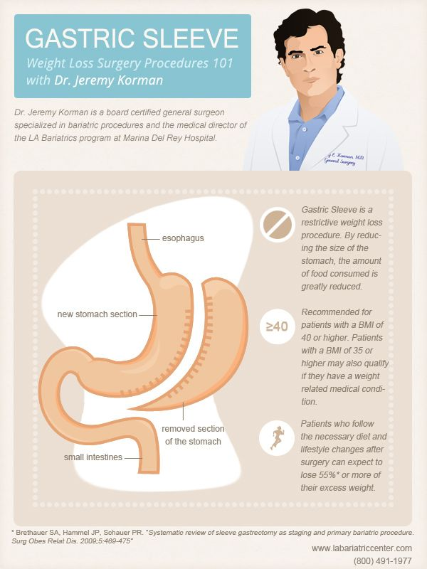 Excellent Infographic on bariatri surgery gastric sleeve procedure from specialized bariatric surgeon Dr. Jeremy Korman http://www.marinaweightloss.com/frontend/default/images/infographics/Gastric-sleeve.jpg