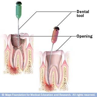 Root Canal   Root Canal Treatment And The Root Canal Procedure   Details From The Oral Care Center