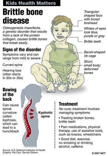 Osteogenesis imperfecta | Osteogenesis Imperfecta | Pinterest