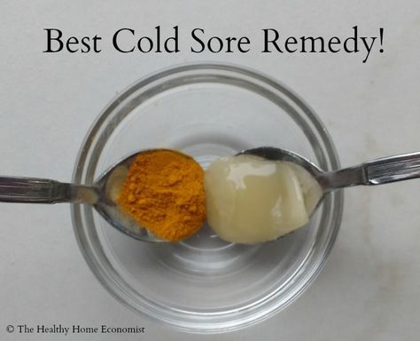 Best remedy for cold sores: raw honey and turmeric. Dab on as a paste. Use early, use often. See the blog for the science. http://www.thehealthyhomeeconomist.com/effective-home-remedies-for-cold-sores-fever-blisters/