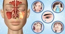 Чем лечить заложенность носа