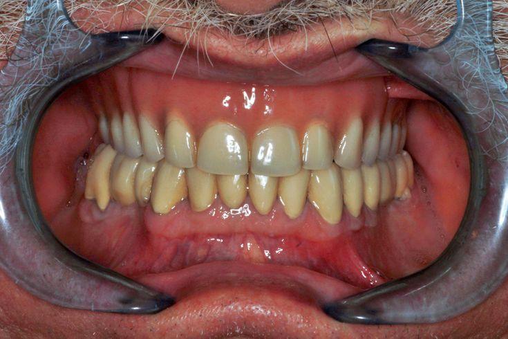 2 patient - Tous les traitements illustrés dans notre galerie de photos ont été réalisés à l'intérieur de notre clinique par nos professionnels de la santé dentaire. - Top Dentiste Budapest, Hongrie