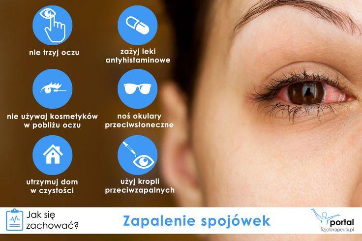 Zapalenie spojówek - co robić? #zdrowie #oczy #uwaga