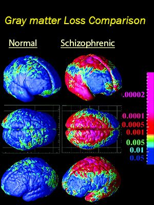 New Study Traces Abnormal Brain Development in Schizophrenia