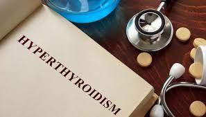 BEST WAYS TO #TREAT #HYPERTHYROIDISM #NATURALLY   The production of #excessive amounts of #thyroxine #hormone can lead to a condition called hyperthyroidism. The common cause of this #disorder is #Graves' #disease, #abnormal #secretion of #thyroid stimulating hormone, excessive intake of #iodine, inflammation of the thyroid #gland, #nodules in the thyroid gland or benign #lumps.