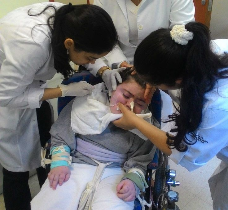 ONG usa botox no tratamento de pacientes com paralisia cerebral