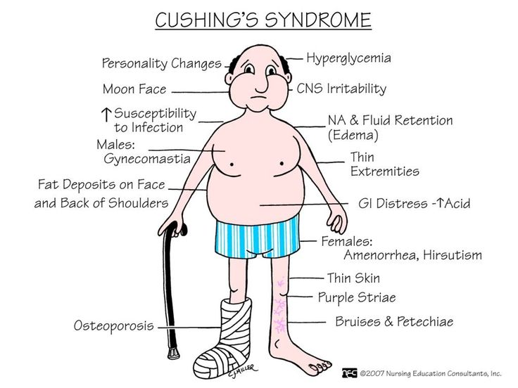 ABC Medicine: Cushing's Syndrome