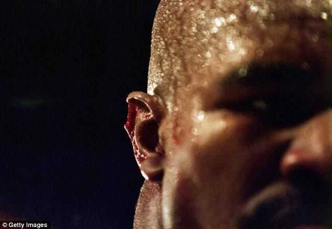 Evander Holyfield's ear after he was bitten by Mike Tyson during their boxing match in Las Vegas on June 28, 1997