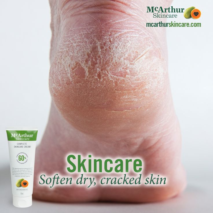 Complete Skincare Cream for your entire body  Soften dry, cracked skin with McArthur Skincare's Complete Skincare Cream, a versatile all-in-one moisturiser that can relieve dry skin leaving your skin feeling fresh, supple and smooth. Perfect after-sun care for your skincare routine.  #mcarthurskincare #pawpaw #papaya #australianmade #skincare #natural #naturalskincare #allnaturalbeauty #naturalbodycare #dryskin #crackedskin