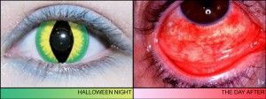 Why you should think twice about costume contact lenses.